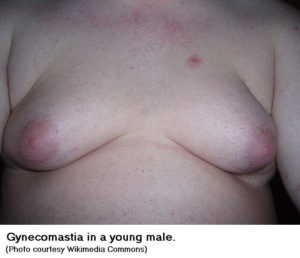 gynecomastia - male breasts